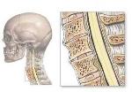 Jenis-Tumor-Medula-Spinalis-dan-Gejalanya