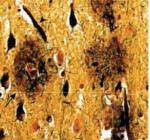 Placas amiloide