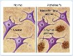alzheimers-plaques