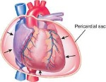 cardiac-tamponade
