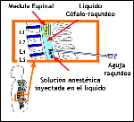 Anestesia%20raquídea
