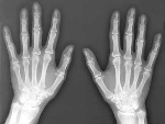 bone-xray-hands