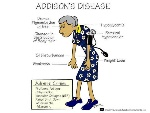 addisons_disease symptoms