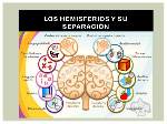 asimetra-cerebral-9-638