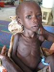 Acute-malnutrition