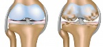 Regenerate-The-Cartilage-In-Your-Knees-With-The-Help-of-Nature-864x400_c