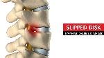 Slipped-Disk-Symptoms