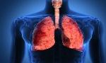 aceites-vias-respiratorias