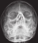 X-ray-of-paranasal-sinuses-showing-bilateral-maxillary-sinusitis-with-the-absence-of-both.ppm