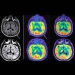 Paciente-de-30-anos-de-edad-portador-de-epilepsia-refractaria-al-tratamiento-p3