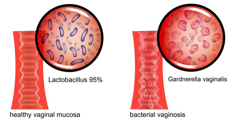 Bacterial-Vaginosis-FI-800x419