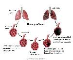 Enfisema-pulmonar