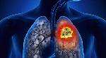 Cancer-de-pulmon-1080x600