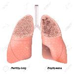 33319482-el-enfisema-enfermedad-pulmonar-obstructiva-crónica-diagrama-que-muestra-una-sección-transversal-de-pulmón-no
