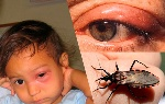 enfermedad-de-chagas