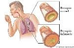 img_como_prevenir_la_bronquitis_21981_600