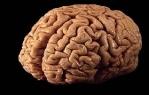 mozga