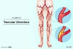 vaskularna