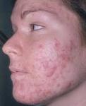 acne_vulgar)