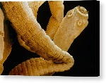 1-coloured-sem-of-a-tapeworm-taenia-sp-power-and-syred-canvas-print