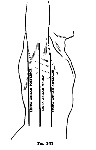 planimetria-axila