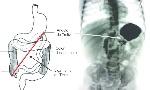 Figura-1-La-localizacion-del-angulo-de-Treitz-debera-ser-normalmente-a-la-izquierda-de