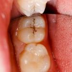 Selladores-dentales-clínica-dental-guadix