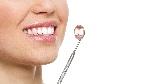 carillas-dentales-para-conservar-la-estetica-de-la-sonrisa