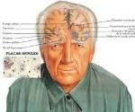 maduracion del cerebro