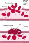 HEM_blood_clots_plugging