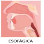 Esofagica