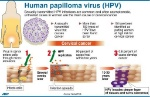 Human-Pappilomavirus