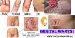What-Causes-Genital-Warts