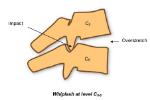 latigazo mecanismo