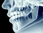 radiologia_dental_tratamiento