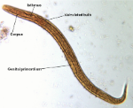 Baermann-test-Strongyloides-stercoralis-first-stage-larva-iodine-stained