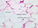 Adipose_connective_tissue
