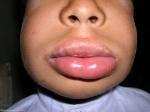 Angioedema-Lip-Swelling