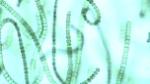 depositphotos_79274976-stock-video-chains-of-algae-these-cyanobacteria