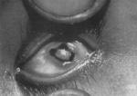 ceguera nocturna