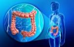 colon-colorectal-cancer
