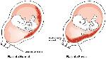 placenta-previa-