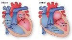 sistole-y-diastole-los-movimientos-del-corazon-256665-jpg_700x0