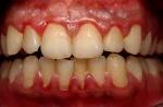 dientes 4