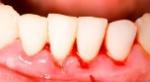 dientes 5
