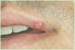 chlamydia-of-the-mouth-pictures_1