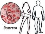 trauma gonorrea
