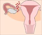 embarazo ectopico complicado