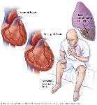mcdc7_heart-failure