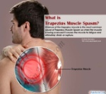 what-trapezius-muscle-spasm